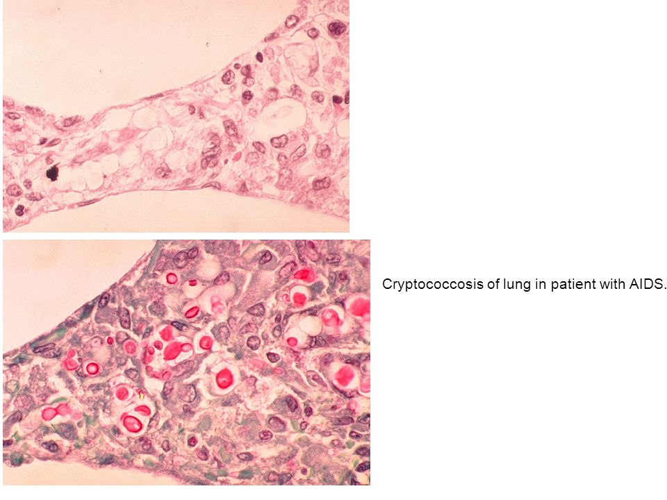 Cryptococcosis of lung in patient with AIDS.