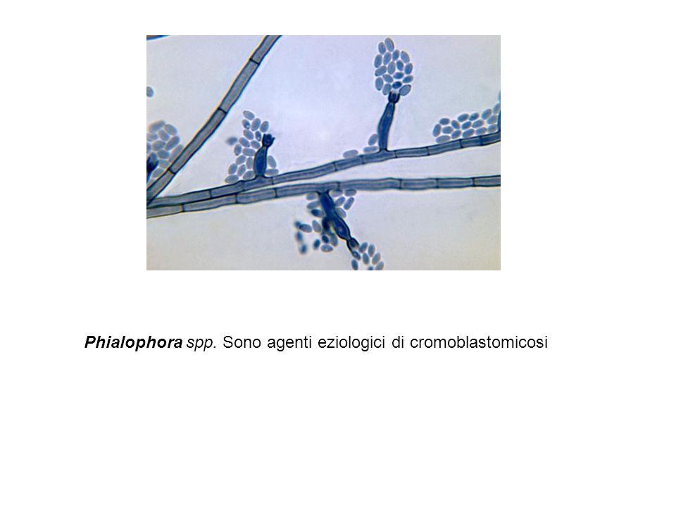 Phialophora spp. Sono agenti eziologici di cromoblastomicosi