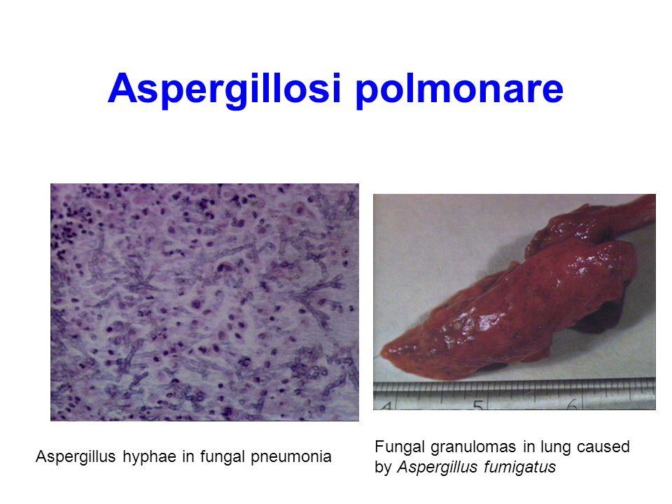 Aspergillosi polmonare
