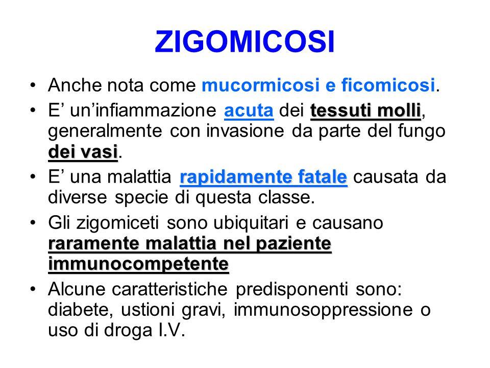ZIGOMICOSI Anche nota come mucormicosi e ficomicosi.