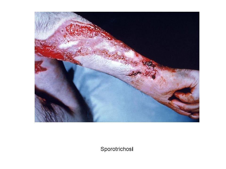 Sporotrichosi