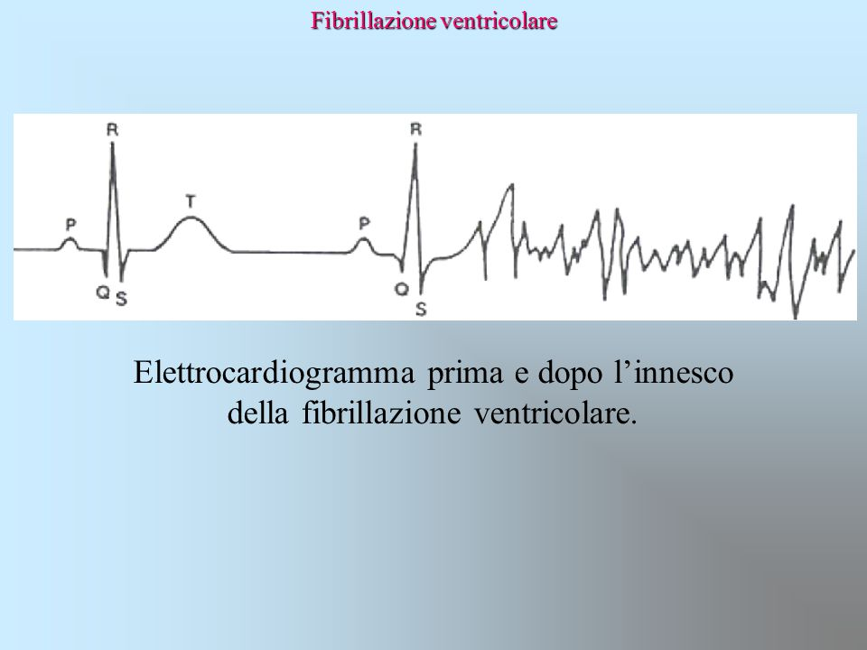 Elettrocardiogramma prima e dopo l'innesco