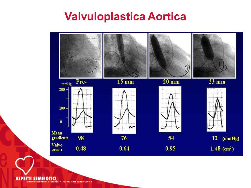 Valvuloplastica Aortica