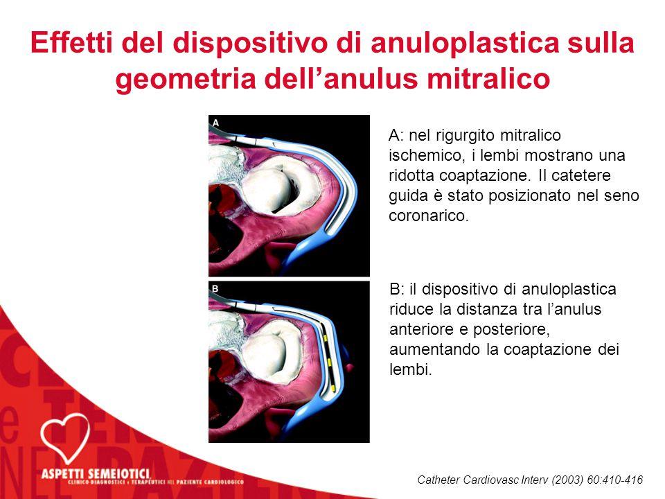 Effetti del dispositivo di anuloplastica sulla geometria dell'anulus mitralico