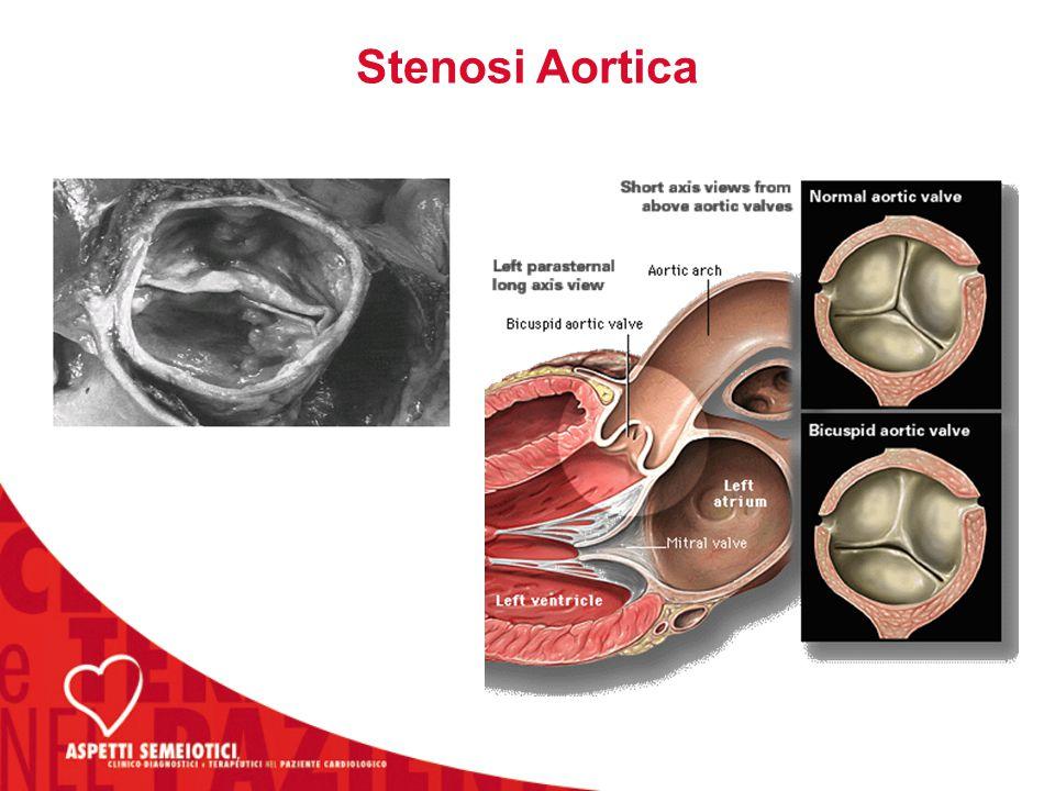 Stenosi Aortica