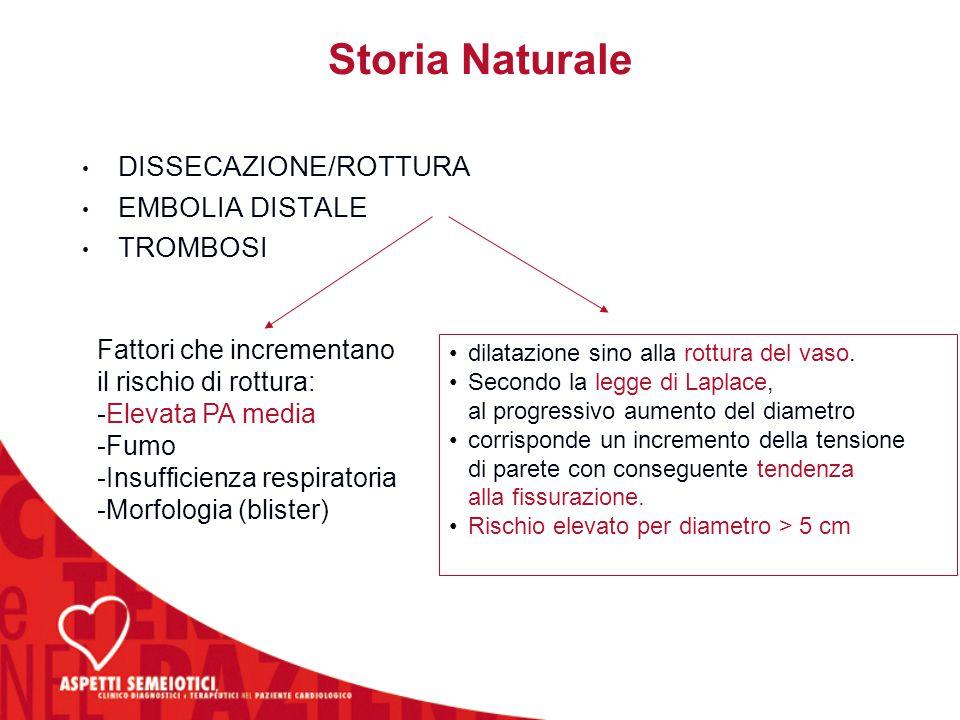 Storia Naturale DISSECAZIONE/ROTTURA EMBOLIA DISTALE TROMBOSI
