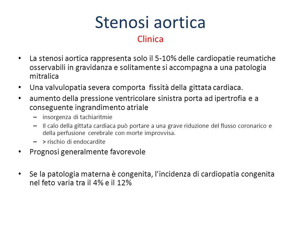 Stenosi aortica Clinica