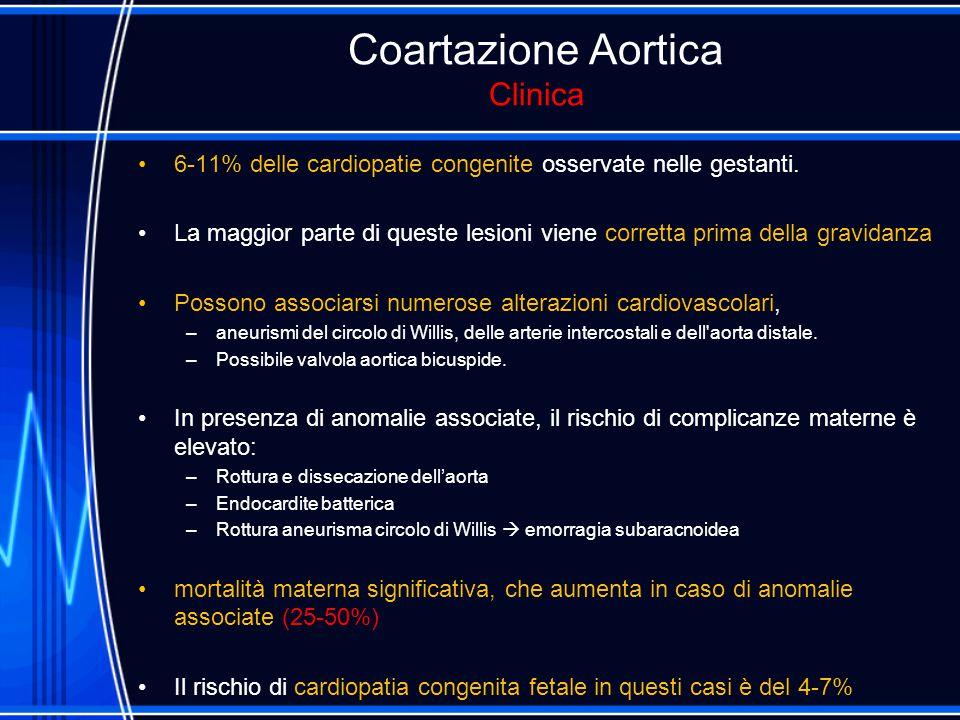 Coartazione Aortica Clinica