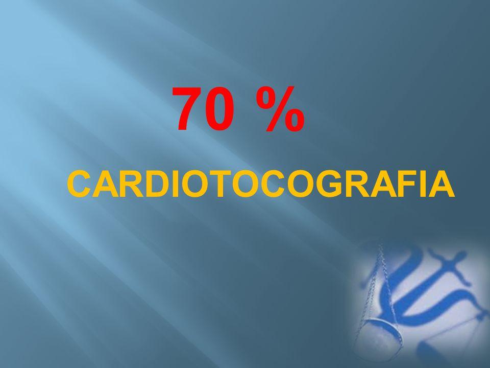 70 % CARDIOTOCOGRAFIA