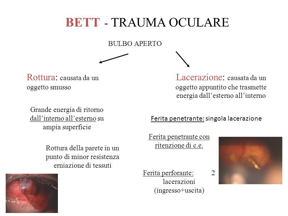 BETT - TRAUMA OCULARE Rottura: causata da un oggetto smusso