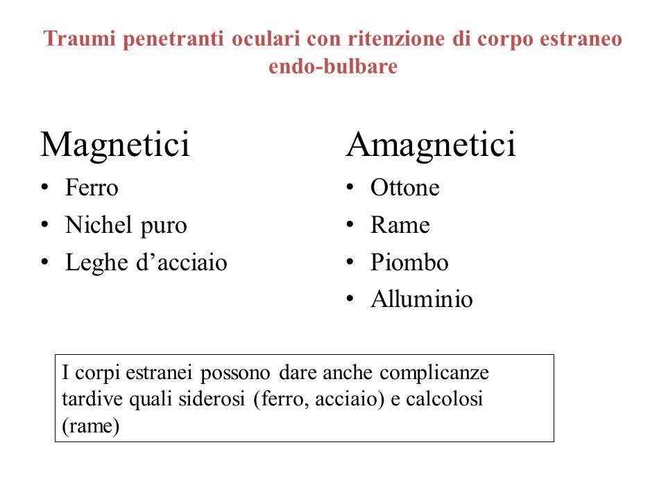 Magnetici Amagnetici Ferro Nichel puro Leghe d'acciaio Ottone Rame