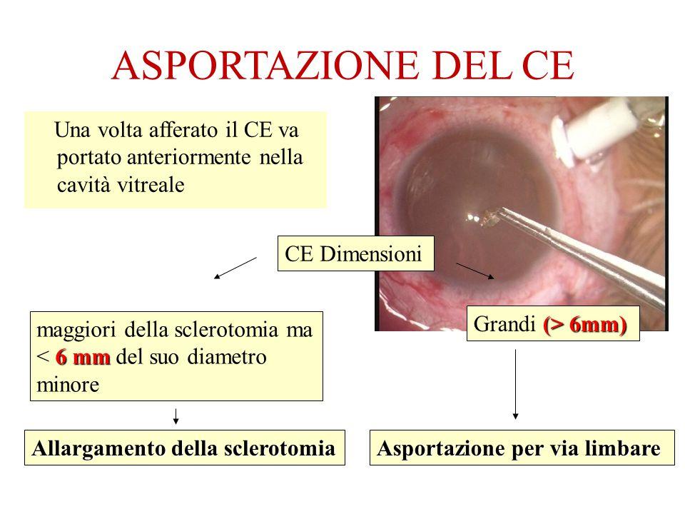ASPORTAZIONE DEL CE Una volta afferato il CE va portato anteriormente nella cavità vitreale. CE Dimensioni.