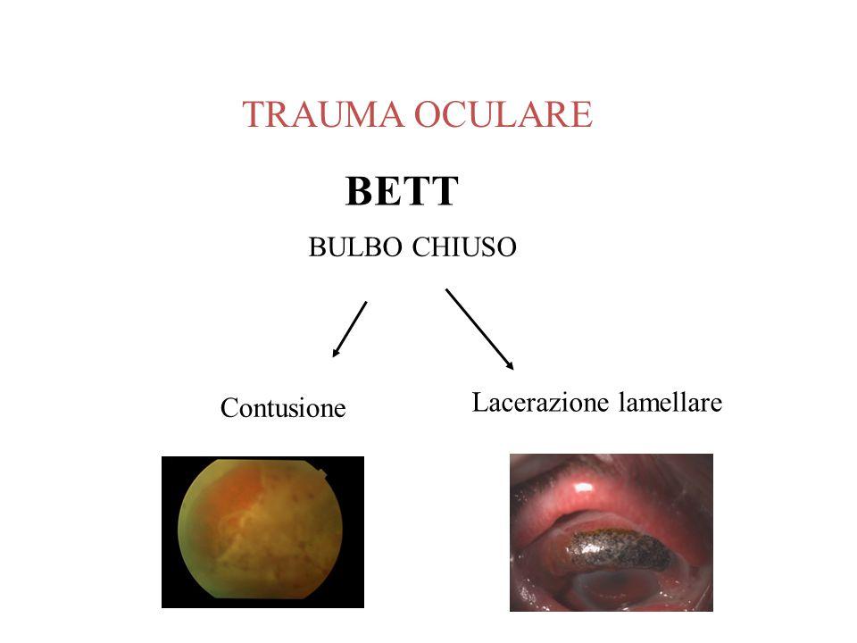 Lacerazione lamellare