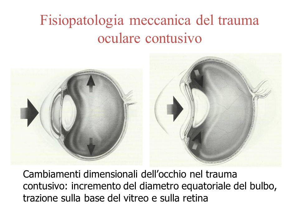 Fisiopatologia meccanica del trauma oculare contusivo