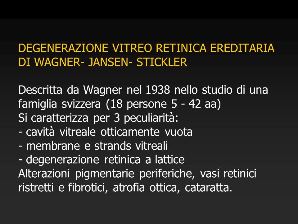DEGENERAZIONE VITREO RETINICA EREDITARIA DI WAGNER- JANSEN- STICKLER Descritta da Wagner nel 1938 nello studio di una famiglia svizzera (18 persone 5 - 42 aa) Si caratterizza per 3 peculiarità: - cavità vitreale otticamente vuota - membrane e strands vitreali - degenerazione retinica a lattice Alterazioni pigmentarie periferiche, vasi retinici ristretti e fibrotici, atrofia ottica, cataratta.
