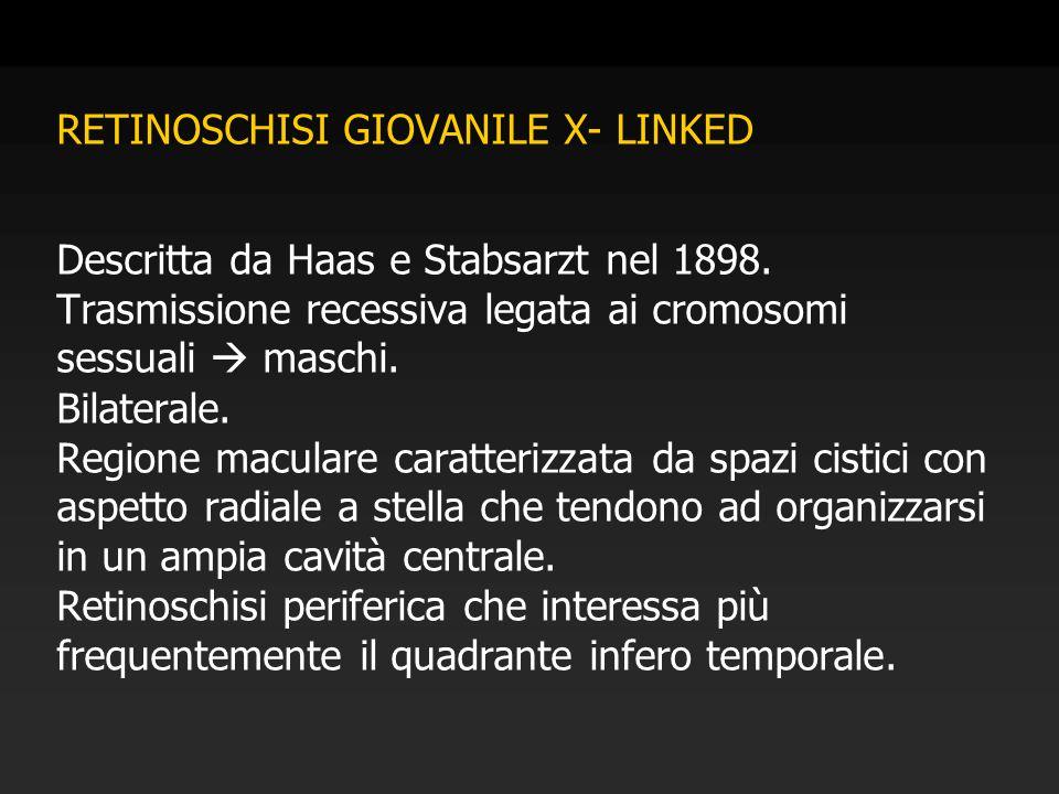 RETINOSCHISI GIOVANILE X- LINKED Descritta da Haas e Stabsarzt nel 1898.