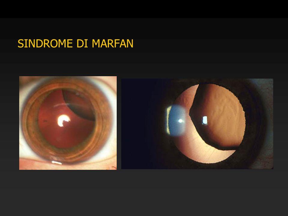 SINDROME DI MARFAN