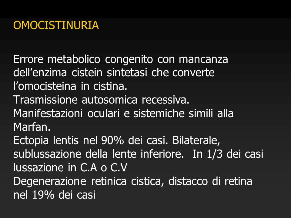 OMOCISTINURIA Errore metabolico congenito con mancanza dell'enzima cistein sintetasi che converte l'omocisteina in cistina.