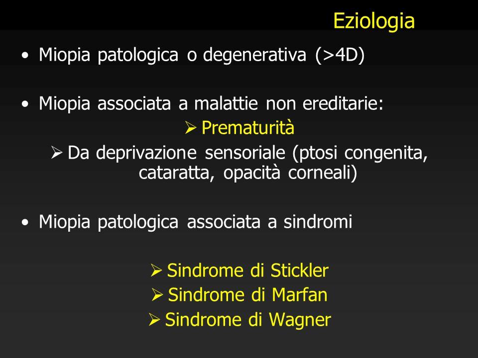 Eziologia Miopia patologica o degenerativa (>4D)