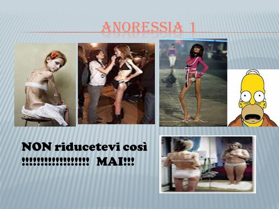Anoressia 1 NON riducetevi così !!!!!!!!!!!!!!!!!! MAI!!!