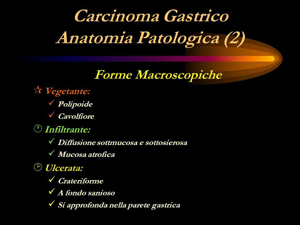 Carcinoma Gastrico Anatomia Patologica (2)