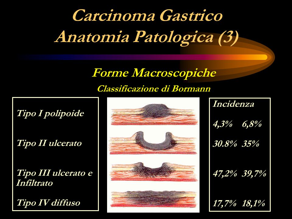 Carcinoma Gastrico Anatomia Patologica (3)