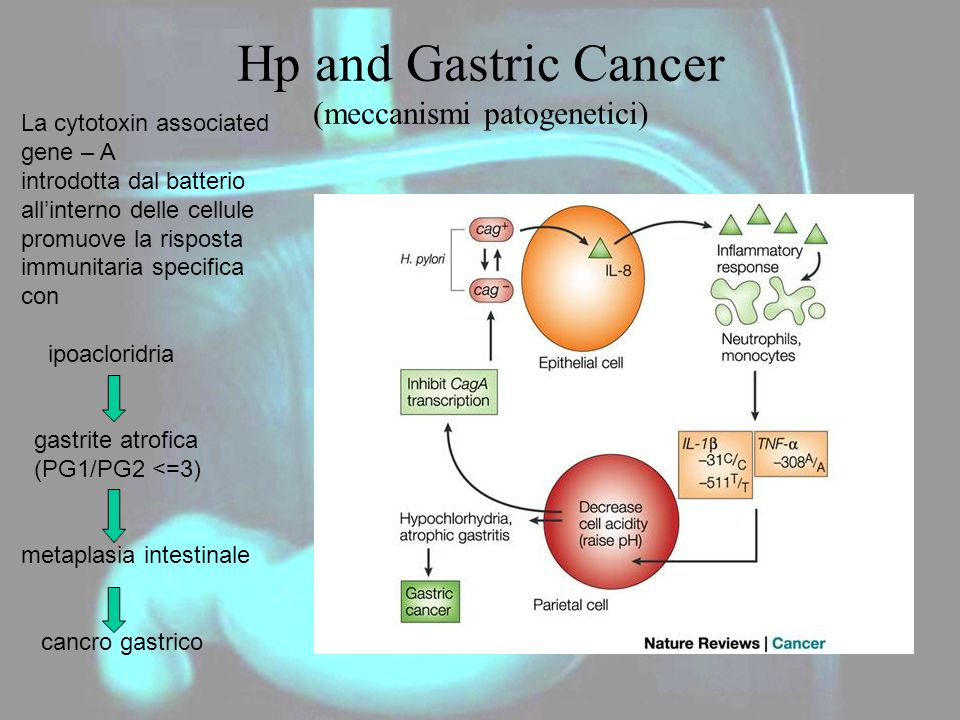 Hp and Gastric Cancer (meccanismi patogenetici)
