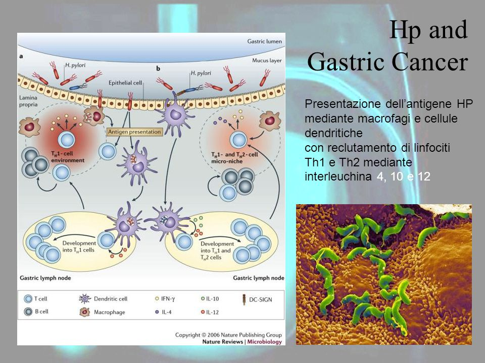 Hp and Gastric Cancer Presentazione dell'antigene HP