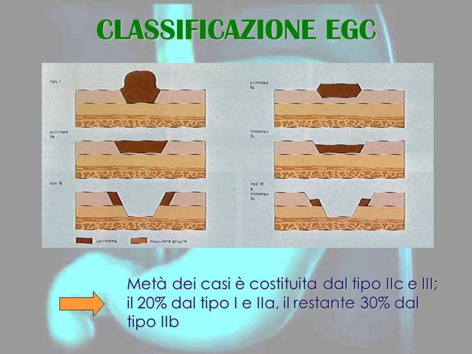 CLASSIFICAZIONE EGC Metà dei casi è costituita dal tipo IIc e III; il 20% dal tipo I e IIa, il restante 30% dal tipo IIb.