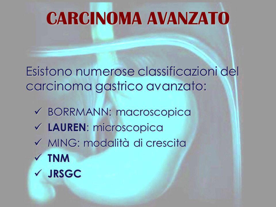 CARCINOMA AVANZATO Esistono numerose classificazioni del carcinoma gastrico avanzato: BORRMANN: macroscopica.