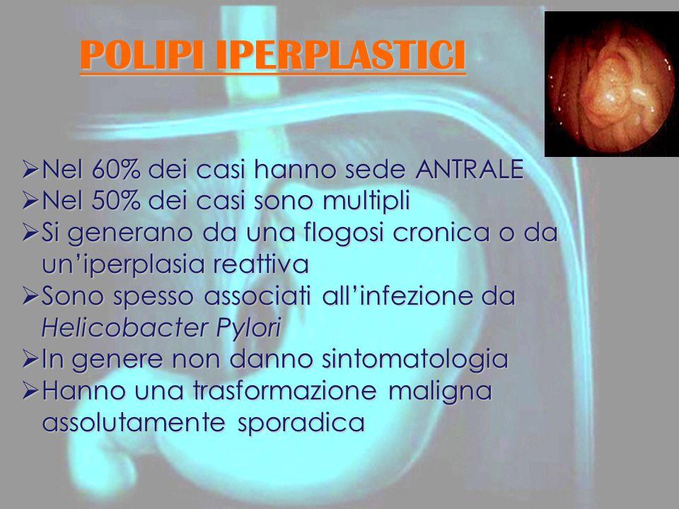 POLIPI IPERPLASTICI Nel 60% dei casi hanno sede ANTRALE