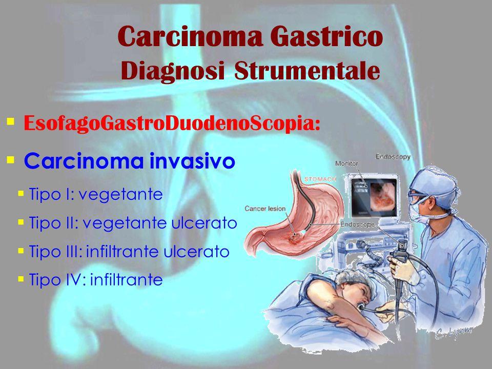 Carcinoma Gastrico Diagnosi Strumentale