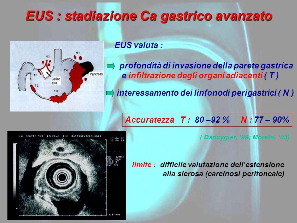 EUS : stadiazione Ca gastrico avanzato