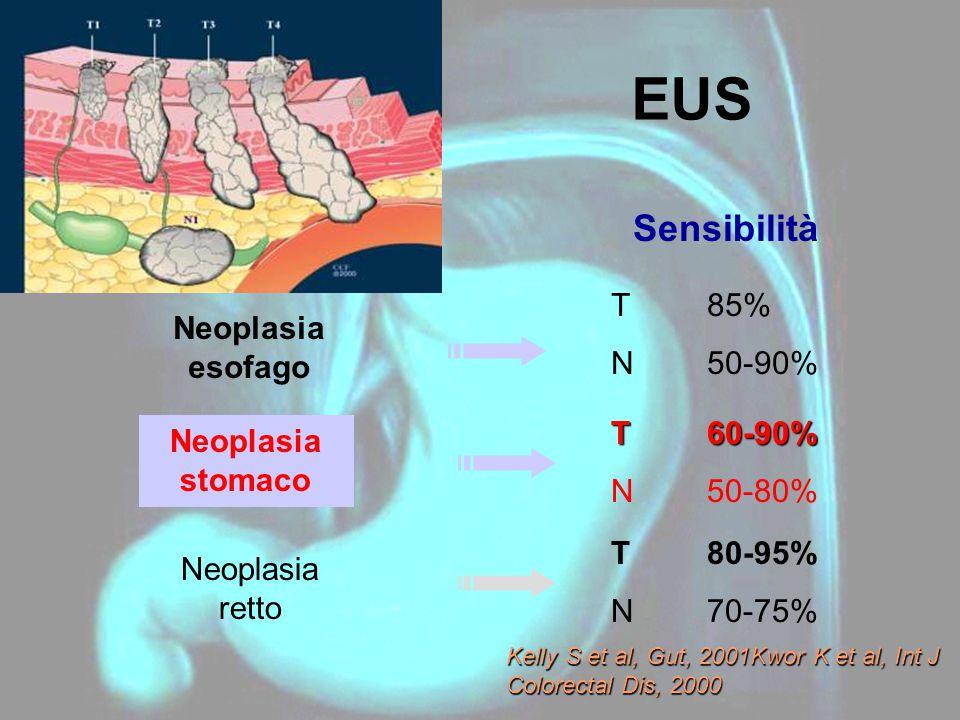 EUS Sensibilità T 85% N 50-90% Neoplasia esofago T 60-90%