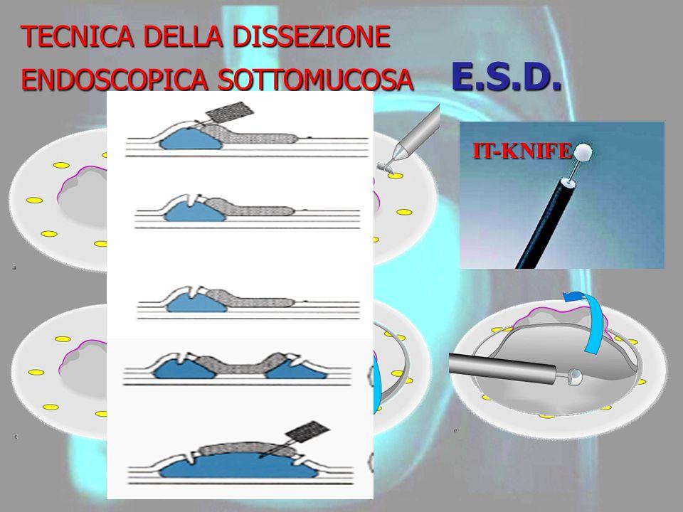 TECNICA DELLA DISSEZIONE ENDOSCOPICA SOTTOMUCOSA E.S.D.