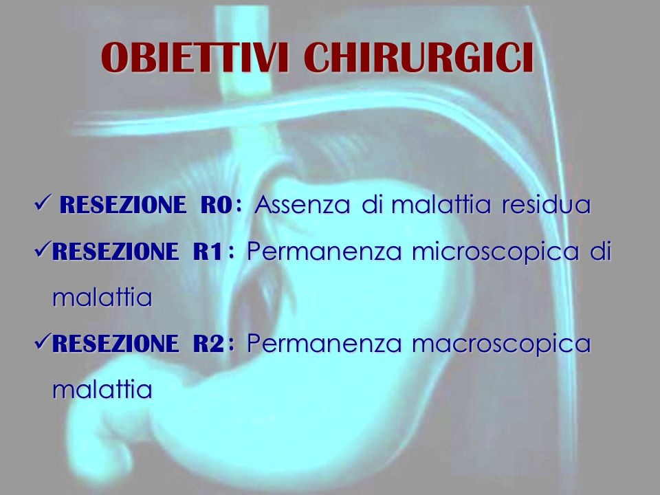 OBIETTIVI CHIRURGICI RESEZIONE R0: Assenza di malattia residua