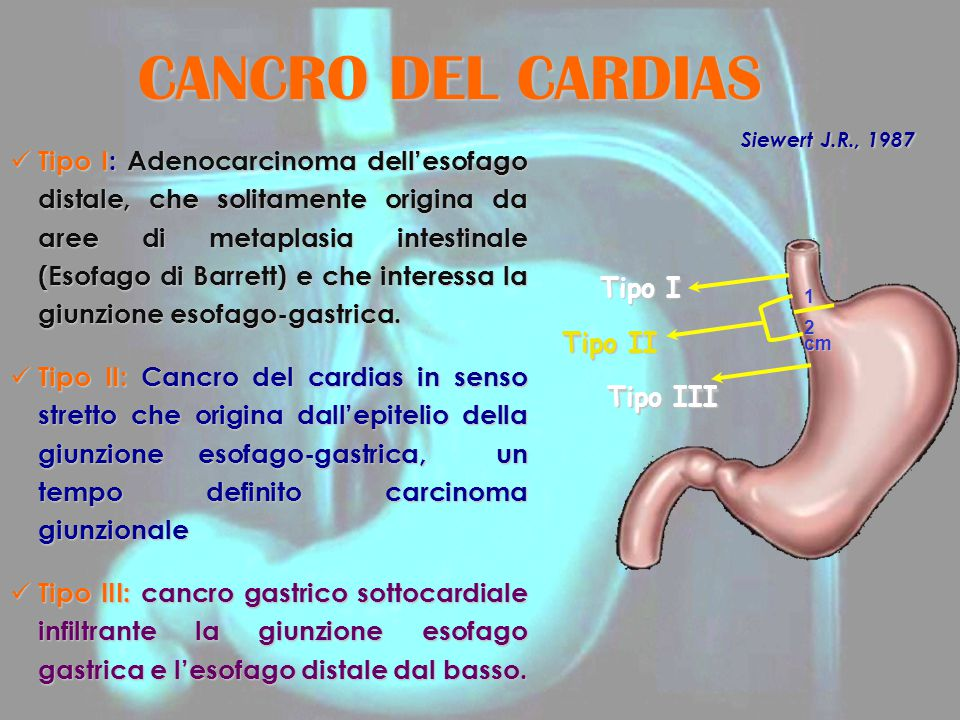 CANCRO DEL CARDIAS Siewert J.R., 1987.
