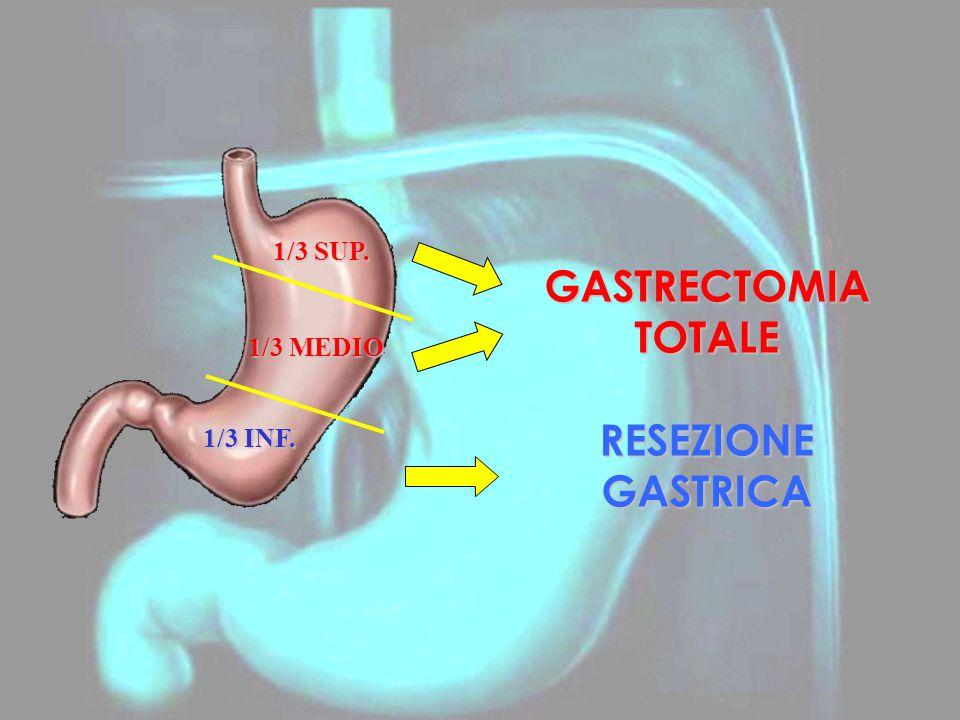 GASTRECTOMIA TOTALE RESEZIONE GASTRICA