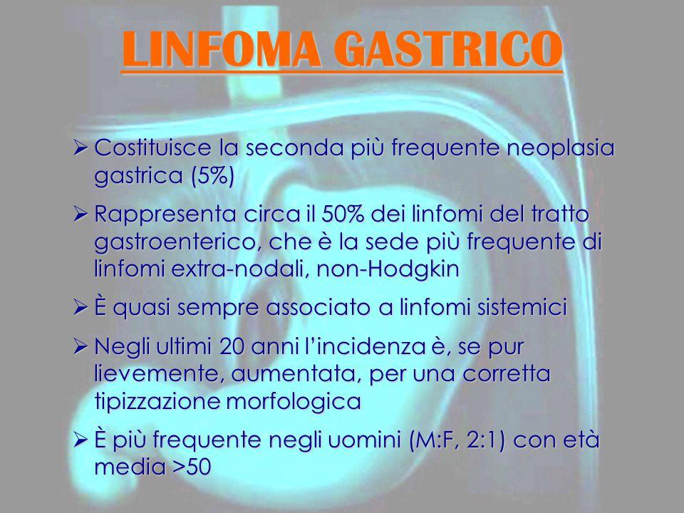 LINFOMA GASTRICO Costituisce la seconda più frequente neoplasia gastrica (5%)
