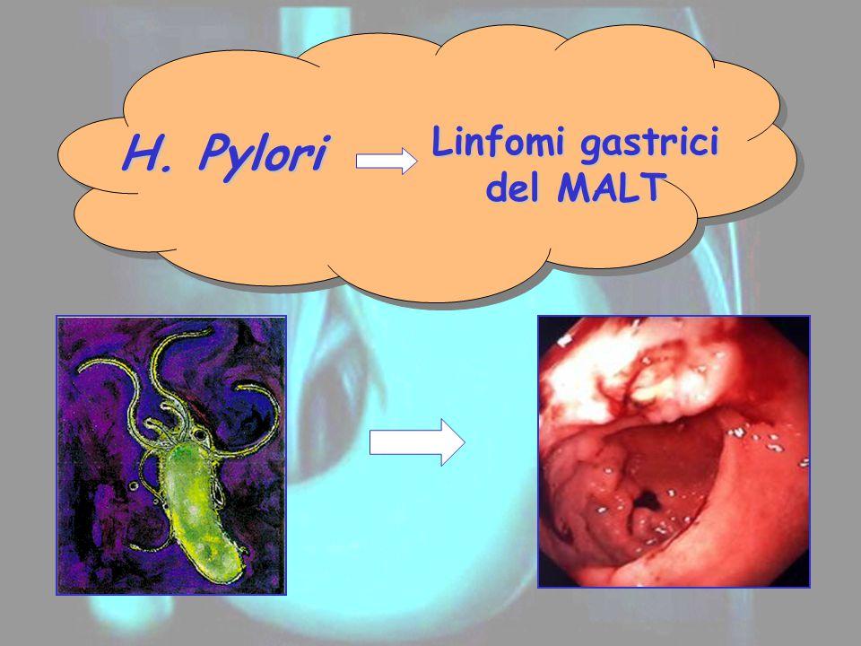 Linfomi gastrici del MALT H. Pylori