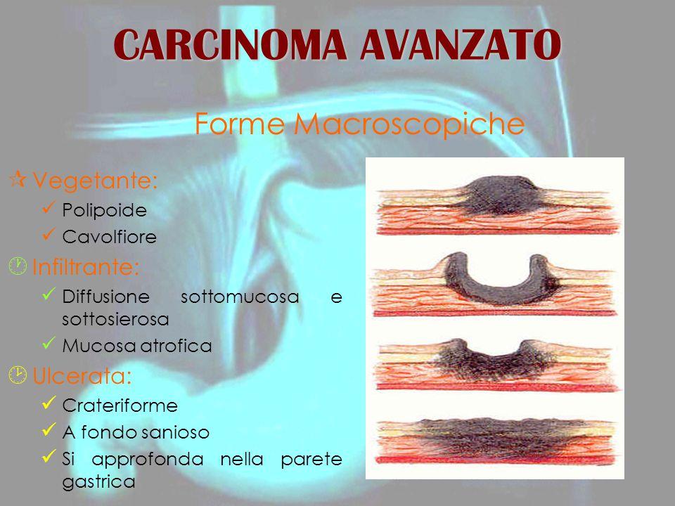 CARCINOMA AVANZATO Forme Macroscopiche Vegetante: Infiltrante: