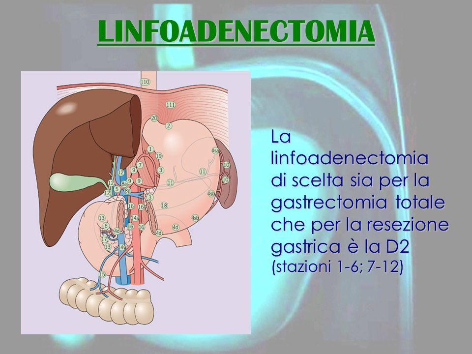 LINFOADENECTOMIA La linfoadenectomia