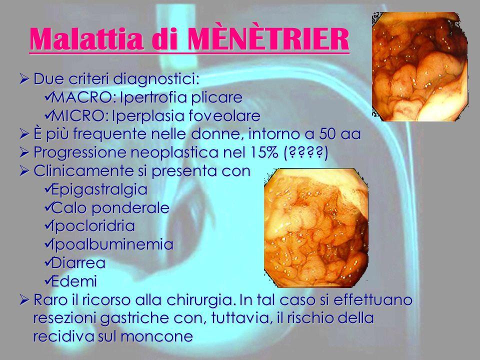 Malattia di MÈNÈTRIER Due criteri diagnostici: