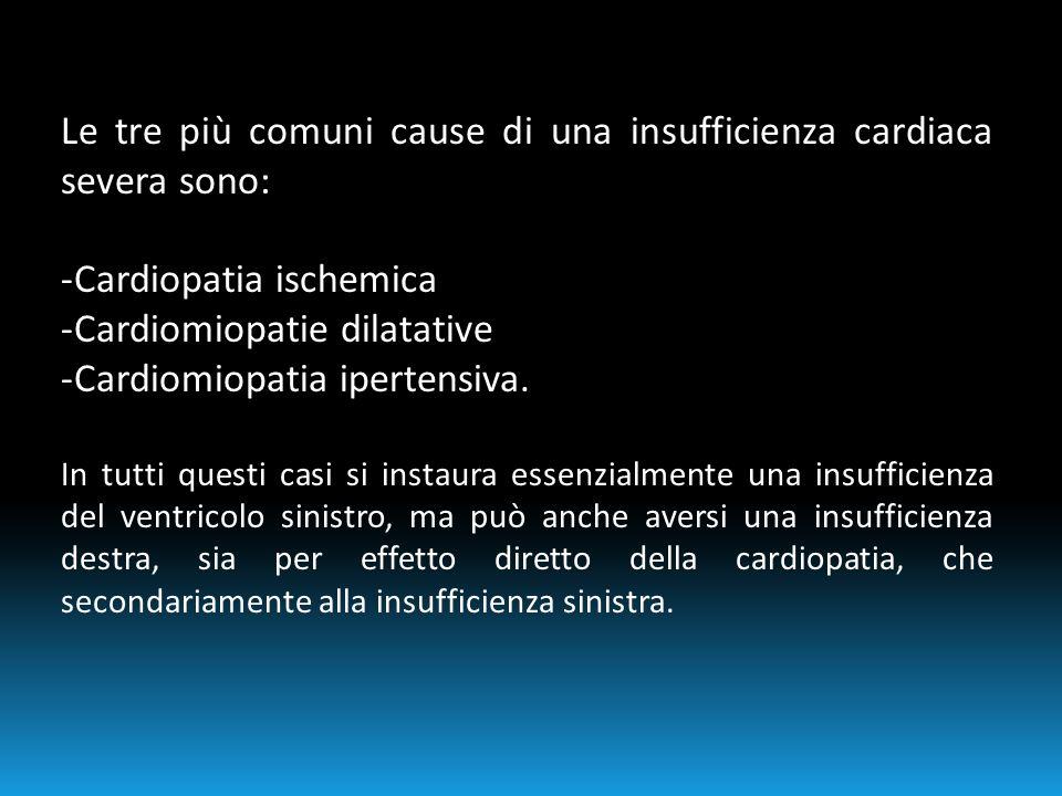 Le tre più comuni cause di una insufficienza cardiaca severa sono: