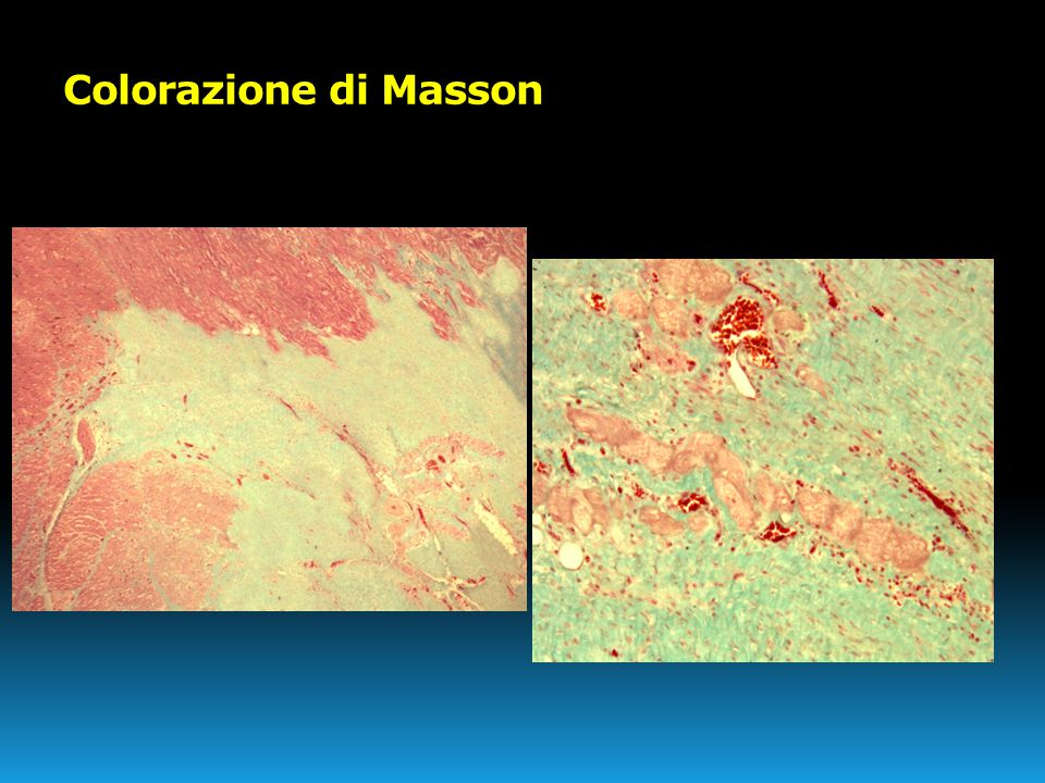 Colorazione di Masson