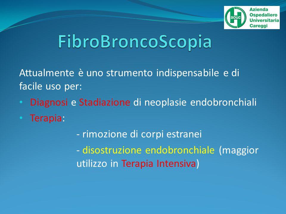 FibroBroncoScopia Attualmente è uno strumento indispensabile e di facile uso per: Diagnosi e Stadiazione di neoplasie endobronchiali.