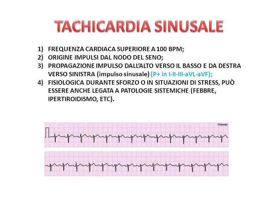 TACHICARDIA SINUSALE FREQUENZA CARDIACA SUPERIORE A 100 BPM;