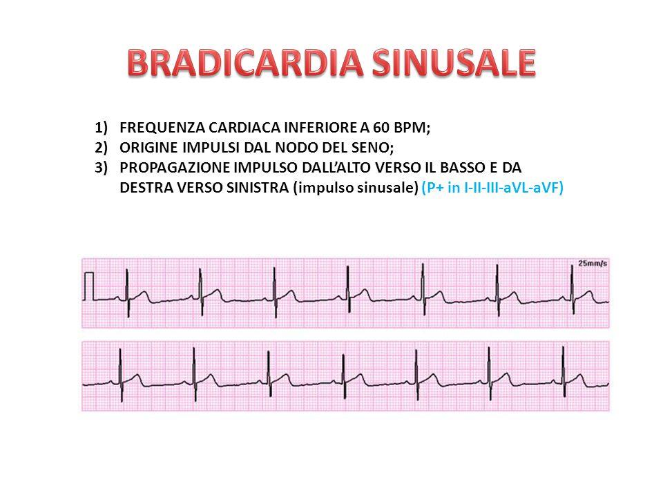 BRADICARDIA SINUSALE FREQUENZA CARDIACA INFERIORE A 60 BPM;