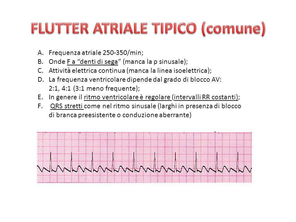 FLUTTER ATRIALE TIPICO (comune)