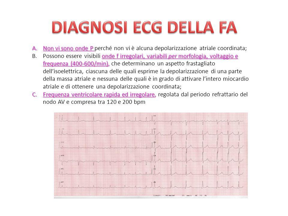 DIAGNOSI ECG DELLA FA Non vi sono onde P perché non vi è alcuna depolarizzazione atriale coordinata;